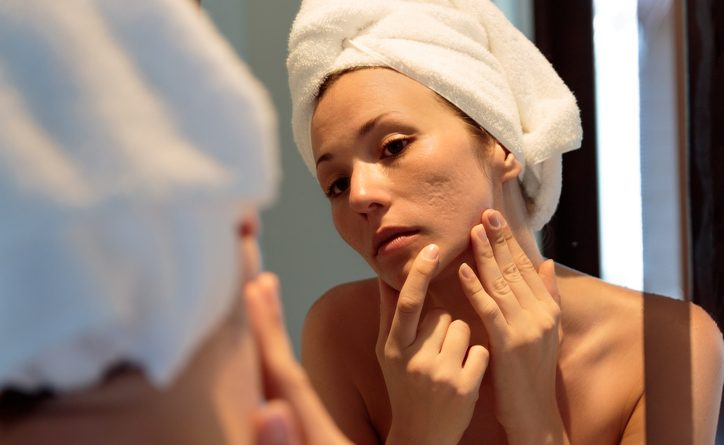 Adult acne: Understanding the causes and prohibitions of separation – Harvard Health Blog